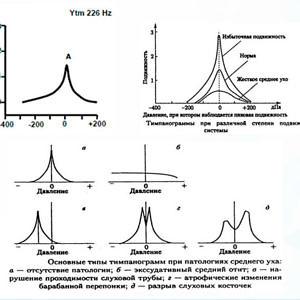 Примеры акустической импедансометрии